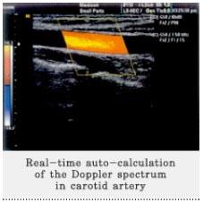SonoAce 8000 LV - Vaszkuláris ultrahang kép