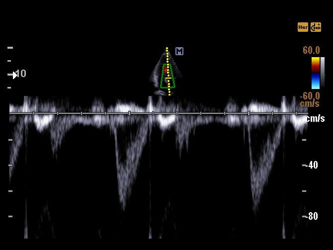 Accuvix A30 - Cardiovascular ultrahang készülék