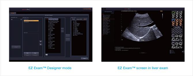 EZ Exam funkció a gyorsabb és kényelmesebb vizsgálatokhoz