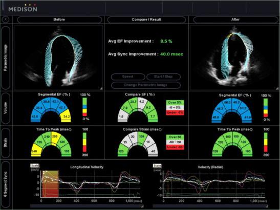 2D strain ultrahang vizsgálat képe