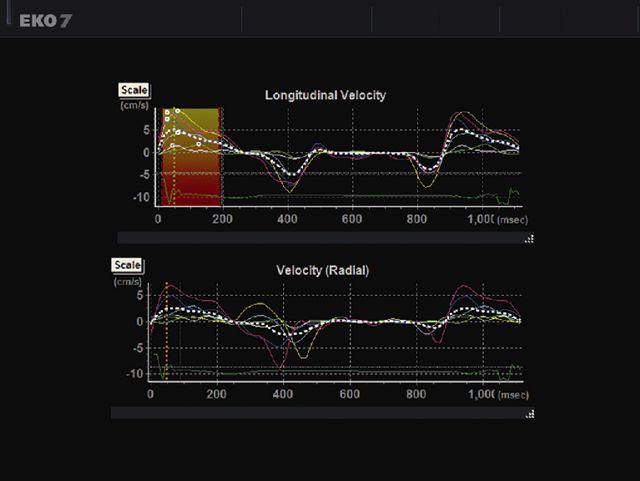 A kardiológiai ultrahang rendszer - EKO7