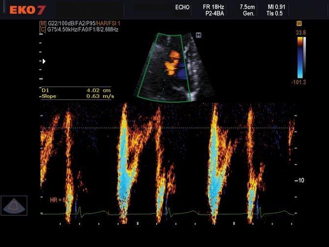 Cardiovascularis ultrahang - EKO7