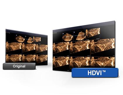 HD Volume Imaging - nagyfelbontású képalkotás