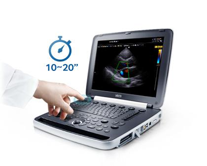 Hordozható ultrahang készülék gyors bekapcsolási idővel