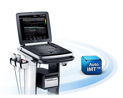 Automatikus IMT-mérés - hordozható ultrahang készülék