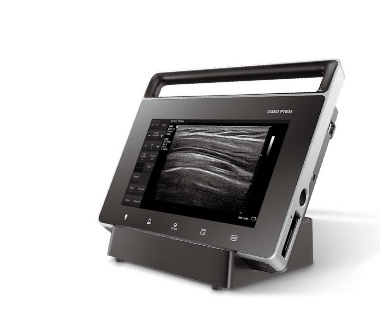 Hordozható ultrahang készülék kompakt kivitelben - Samsung PT60A