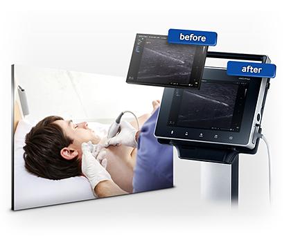 Hordozható ultrahang készülék Needle Mate technikával a biopsziás beavatkozásokhoz