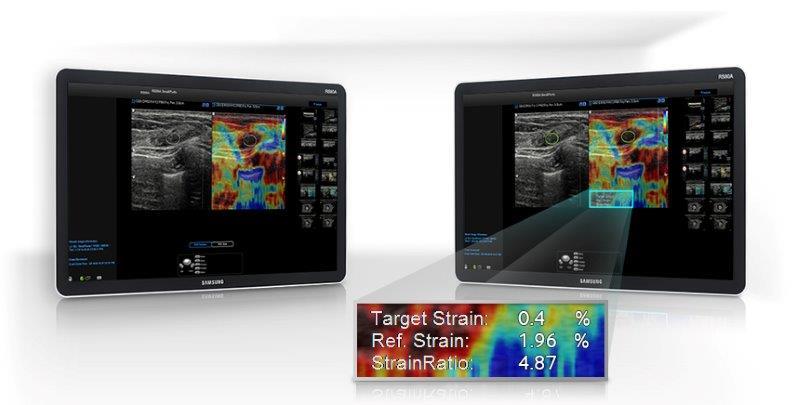 ElastoScan™ for Breast
