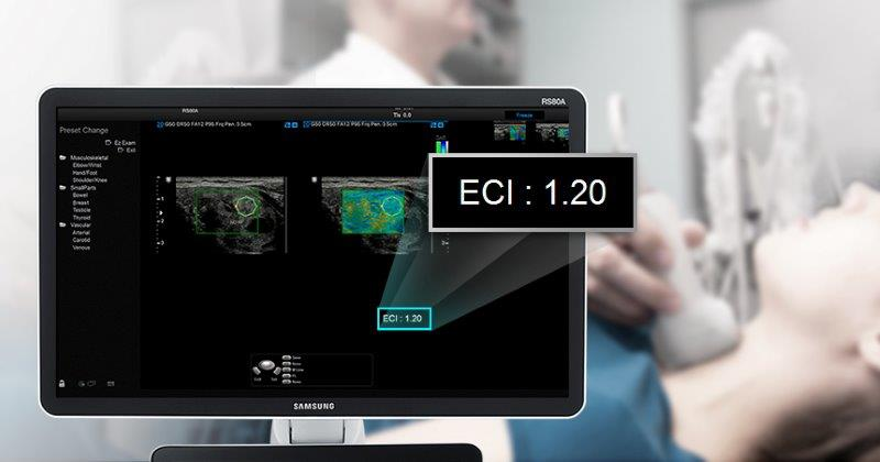 ElastoScan™ for Thyroid