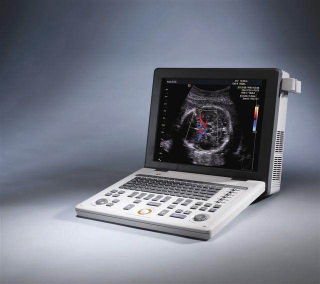 Hordozható színes Doppleres ultrahang készülék