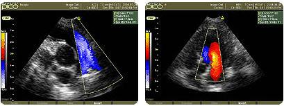 SonoVet PICO hordozható állatorvosi ultrahang készülék kardiológiai képe