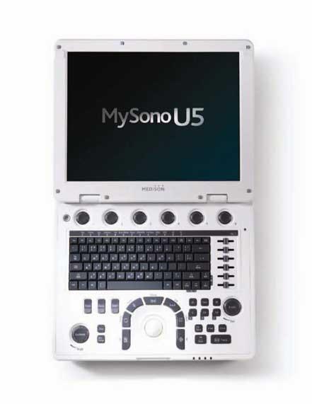 Hordozható 3D / 4D ultrahang készülék color, power, pulzus Dopplerrel - MySono U5