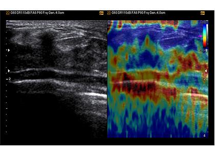 Elasztográfiai vizsgálat képe UGEO WS80A ultrahang készülékkel