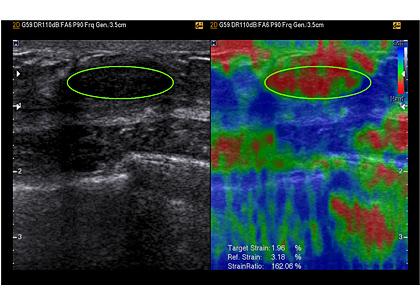 e-DEB vizsgálat képe UGEO WS80A ultrahang készülékkel