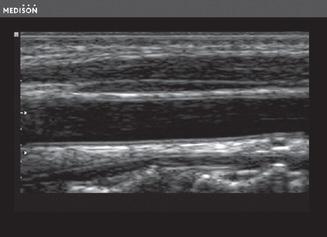 Hasi ultrahang kép - fekete-fehér hordozható ultrahang