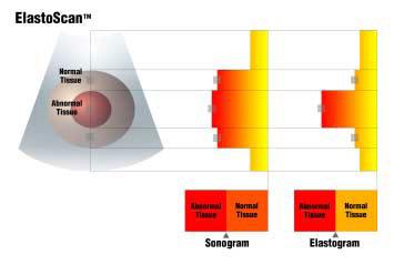 Medison Elasztográfia működési elve