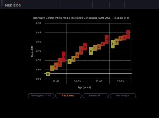 Auto Intima Media Thickness mérés eredményének kiértékelése