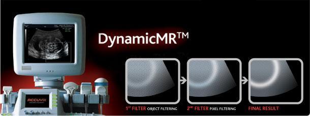 Medison DynamicMR™ Speckle Reduction Filter technika