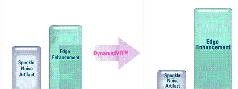 A DynamicMR™ Speckle reduction Filter technika hatása