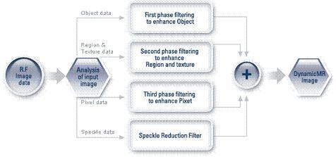 Medison DynamicMR™ Speckle Reduction Filter technika - működési elve