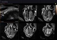 Magzati gerinc képe Multi-OVIX módban