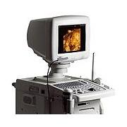SonoAce 8000LV/EX